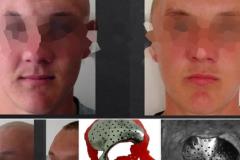 Впервые в Молдове: мужчине частично восстановили лицо при помощи титана