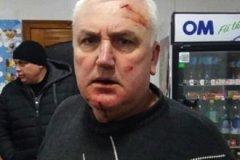 В день выборов мэр Дрепкауц избил местного советника, заступившегося за свою жену