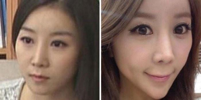 Форма лица в виде сердечка, Южная Корея, женщины идут на пластику, чтобы соответствовать этому канону красоты