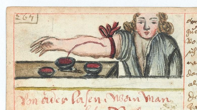 Кровопускание было одним из самых популярных и часто используемых методов